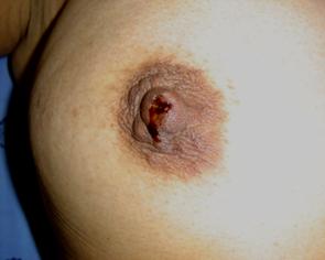 retraccion del pezon cancer de mama